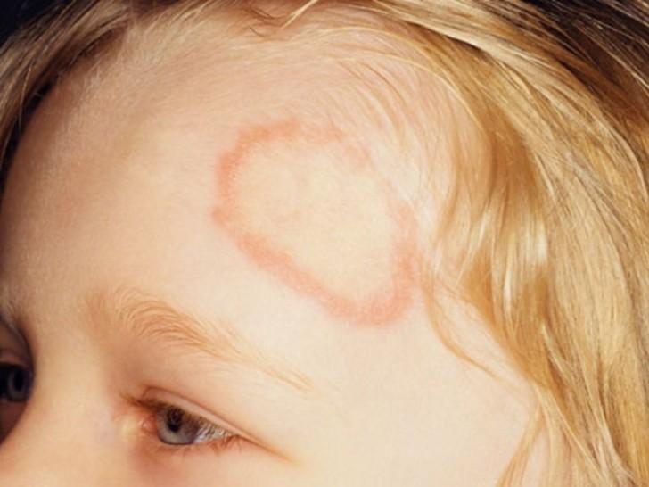 A zuzmó kezelése a gyermek fején