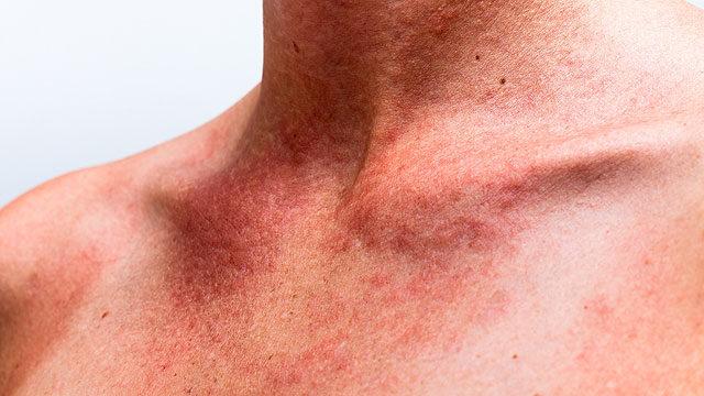vörös foltok a nyak és a mellkas bőrén