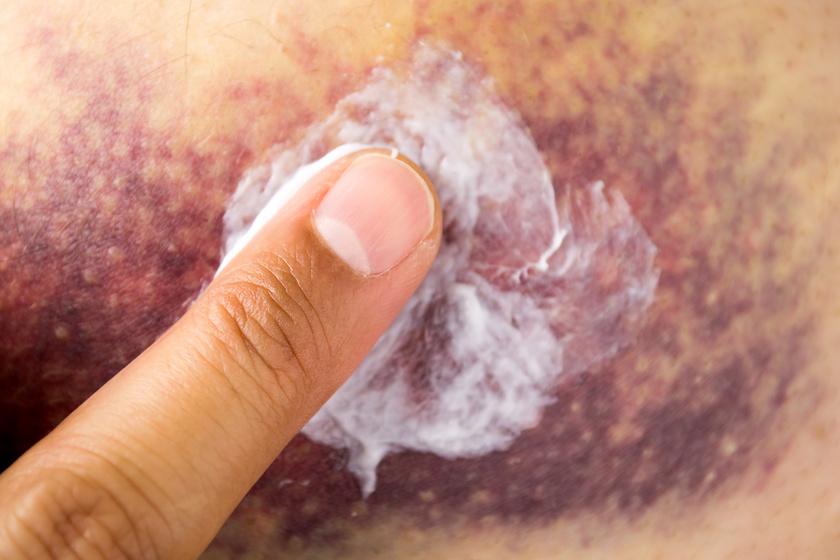 gyógymódok a kezén lévő vörös foltok ellen
