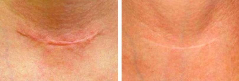 arc hegek és vörös foltok ellen pszoriázis kezelésének módjai
