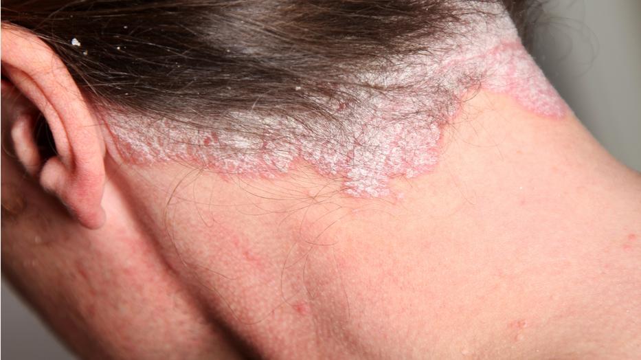 terhesség meggyógyította pikkelysömör piros foltok a hát alsó részén és a hasán