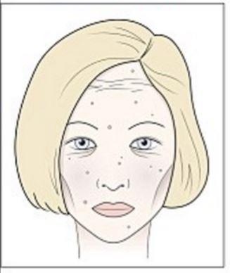 vörös foltok pattanások formájában jelentek meg az arcon