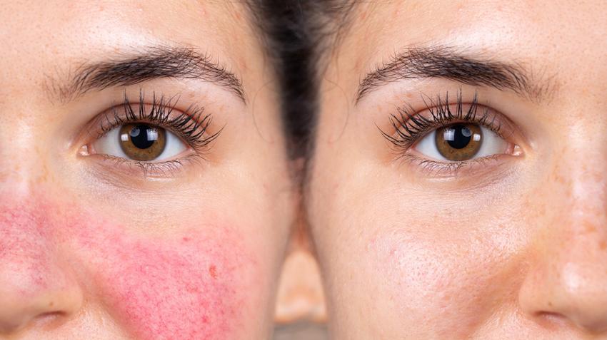 Piros foltok jelentek meg az arcon, mit kell fényképezni