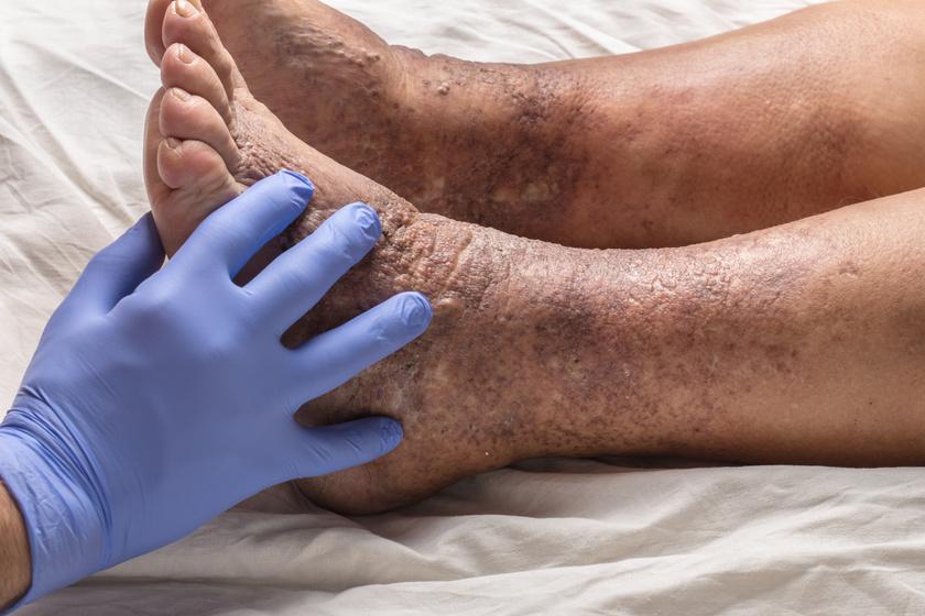 Vörös foltok a láb bokáján és a boka duzzanata, Vénás zavarok