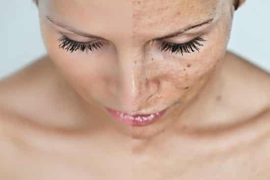 hogyan lehet fehéríteni egy piros foltot az arcon