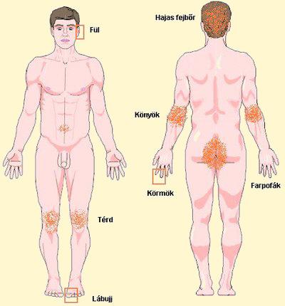 pikkelysömör a lábakon a kezelés kezdeti szakasza