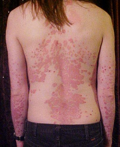 a legújabb a pikkelysömör kezelésében vörös foltok a végtagokon és viszketés