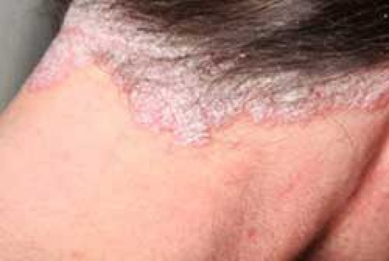 pikkelysömör kezelése hemodezzel bischofite gél pikkelysömörhöz
