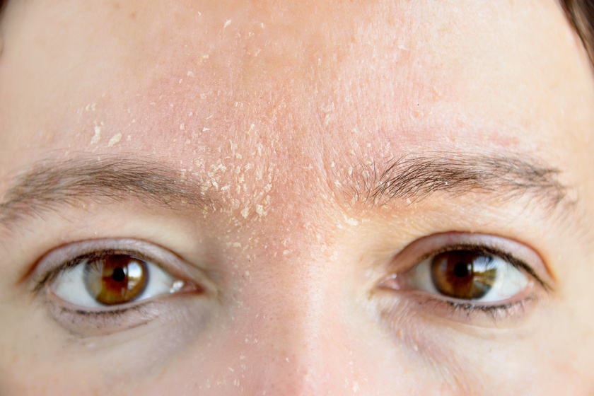 az arcbőr hámlik és vörös foltok borítják)