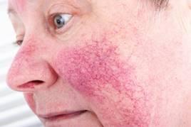 Vörös durva foltok az arcon, mint kezelni. Mi a rozácea?
