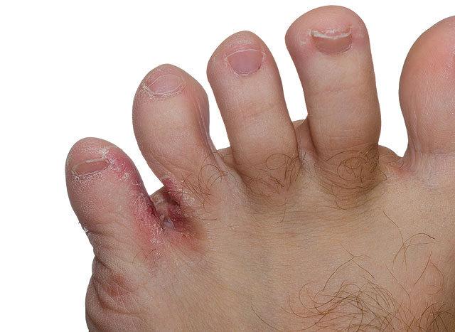vörös foltok a lábujjakon és a láb duzzanata
