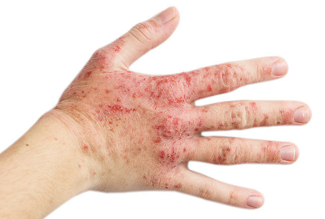 viszkető lábak és kezek vörös foltok jelennek meg