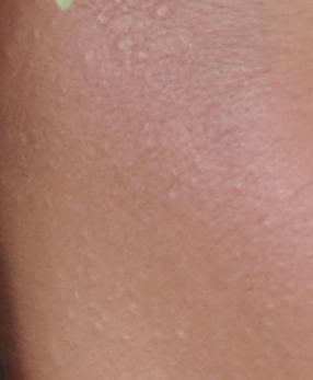 a férj piros foltot viszket keskeny sávú fototerápia pikkelysömör kezelésére