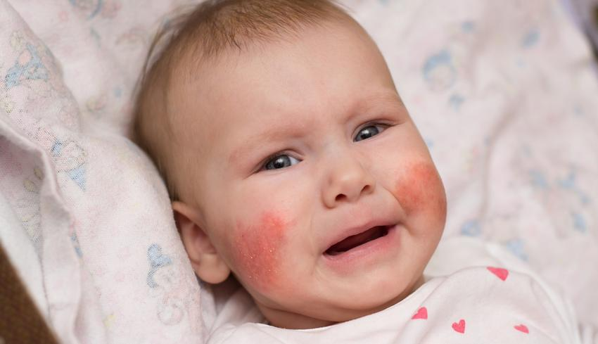 vörös pikkelyes foltok az arcon és a szemeken)