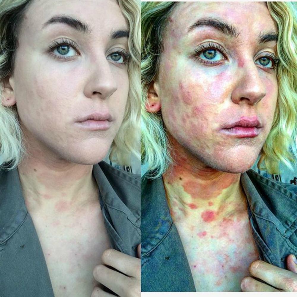 vörös foltok kezdtek megjelenni a testen és lehámozódtak hogyan lehet megszabadulni a vörös foltoktól és az arc pelyhesedésétől