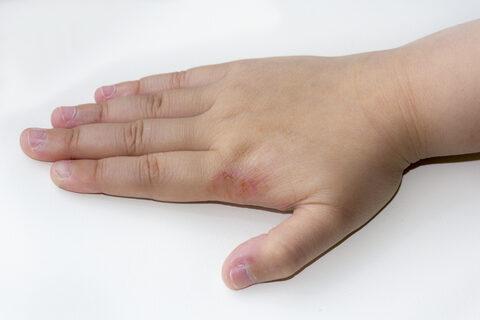 vörös foltok az ujjak belső oldalán)