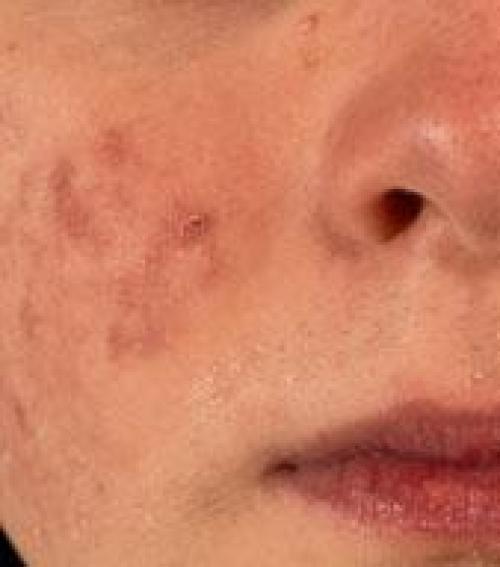 vörös foltok jelentek meg a száj körüli arcon)