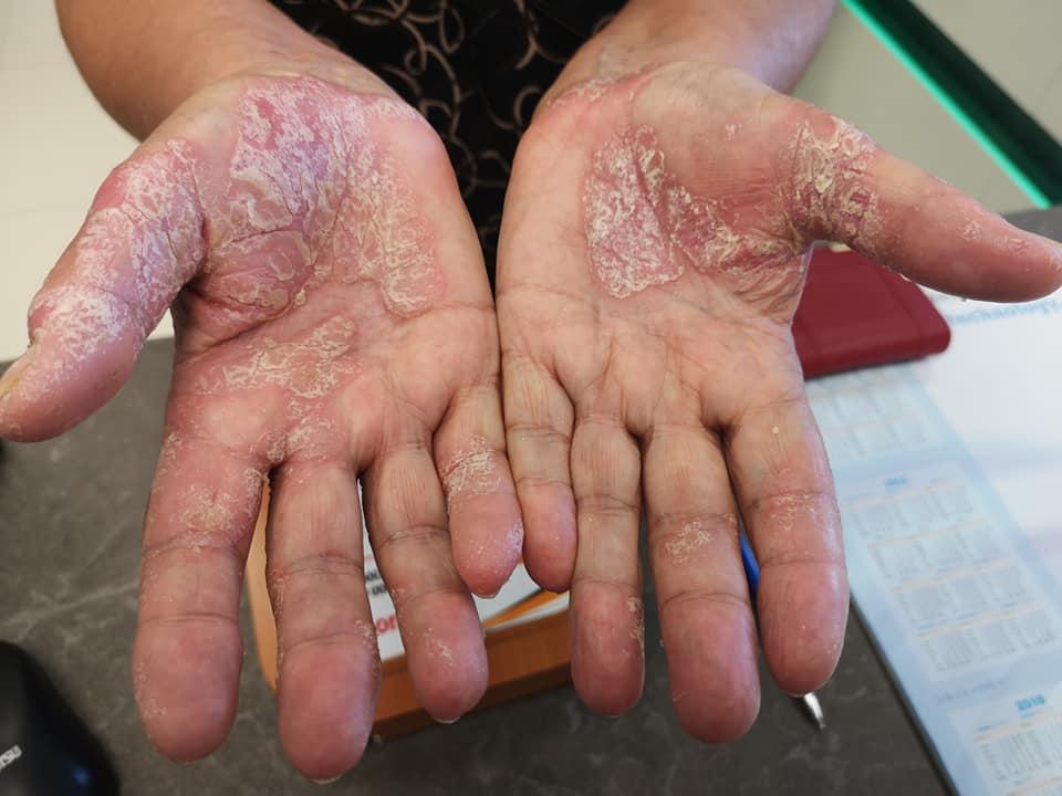a kezén vörös folt hámlik
