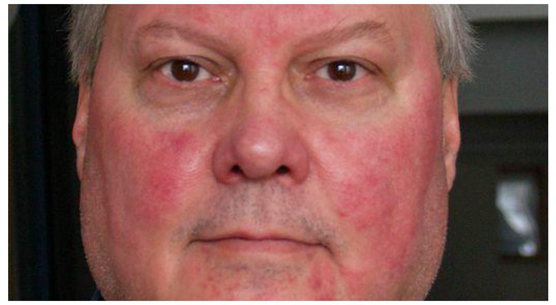 hogyan kell kezelni a vörös pikkelyes foltokat az arcon)