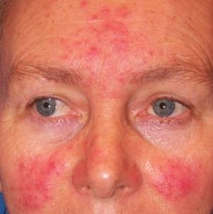 kozmetikus az arcon lévő vörös foltok eltávolítására)
