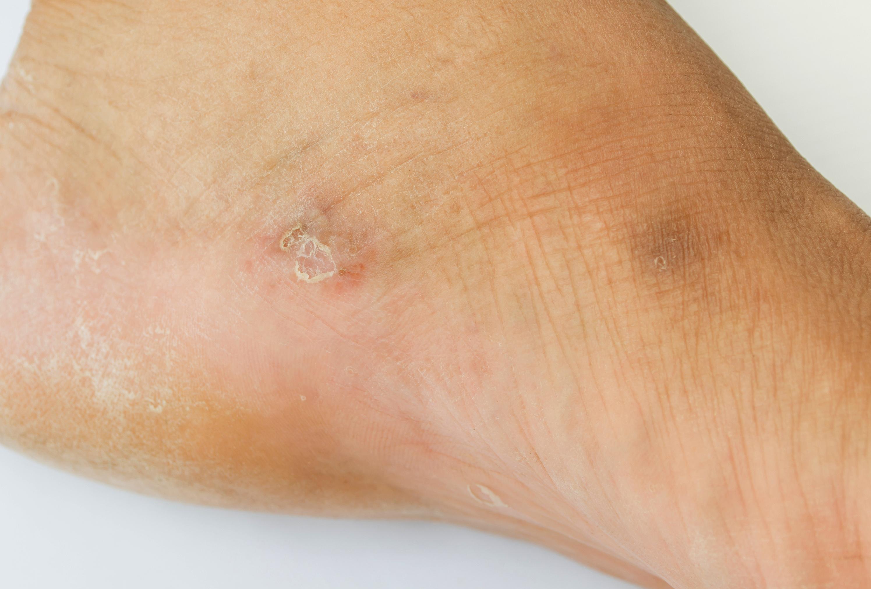 a lábán egy vörös folt kissé hámlik