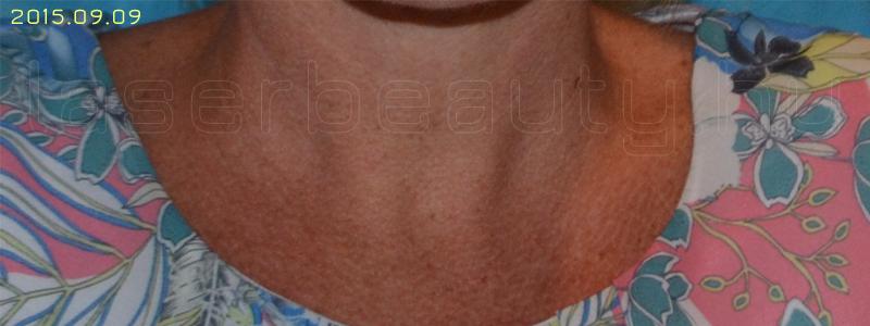 barna vörös foltok a testkezelésen pikkelysömör kezelése múmia véleményekkel