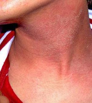 piros nyak viszket a nyakon