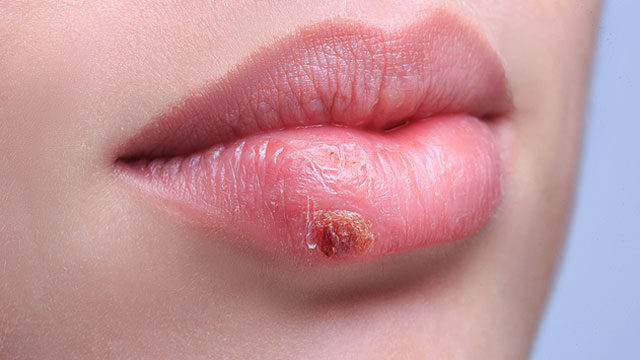 vörös folt a herpesz után, mint kezelni