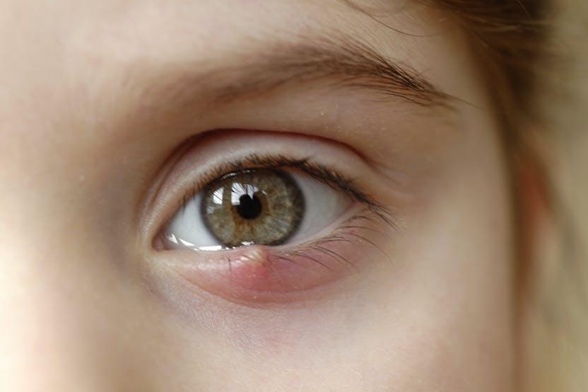 a szem alatt vörös foltok viszketik mi ez