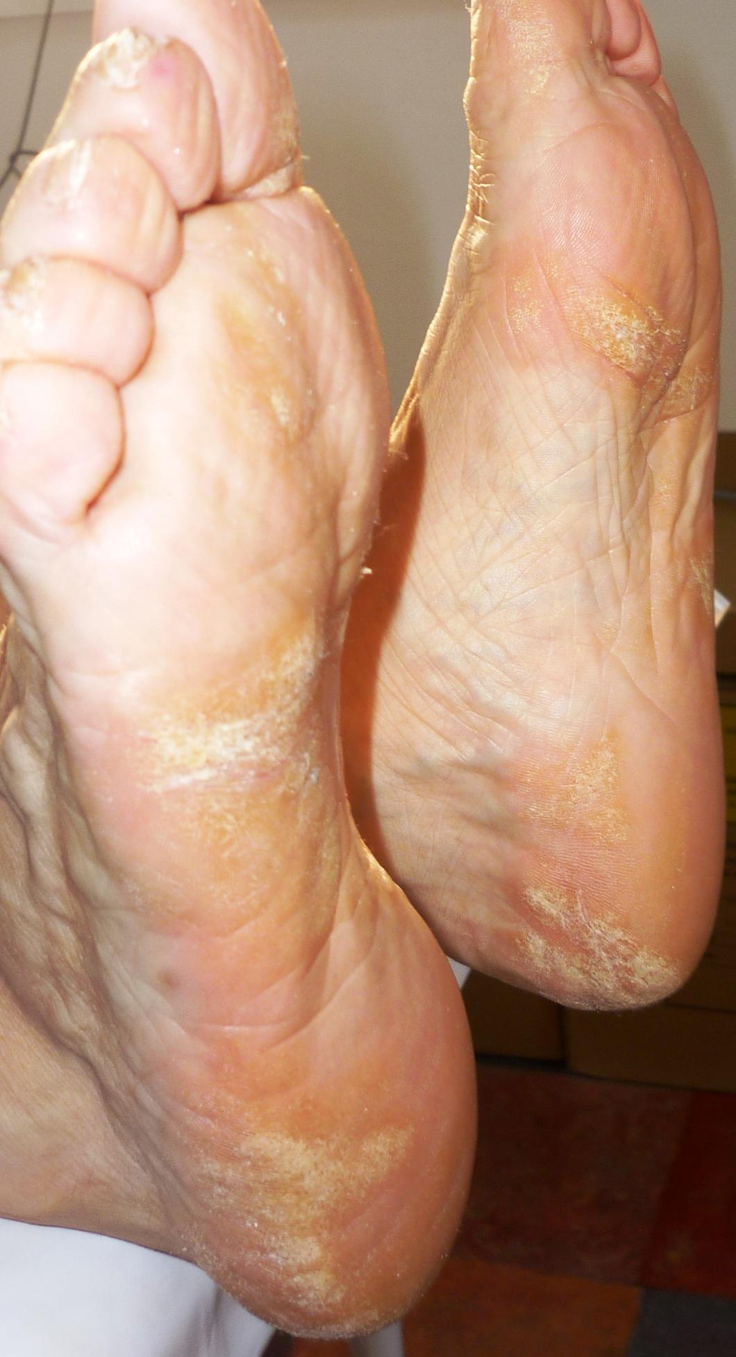 a lábán a folt piros vörös folt a csuklóján viszketés fotó