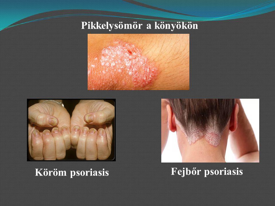 psoriasis vulgaris hogyan kell kezelni