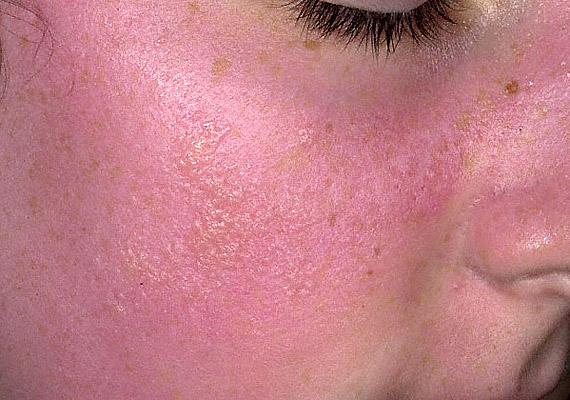 bőrkiütés vörös foltok formájában az arcon