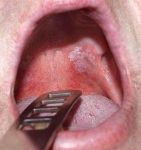 hogyan kezeljük a nyelv vörös foltját)
