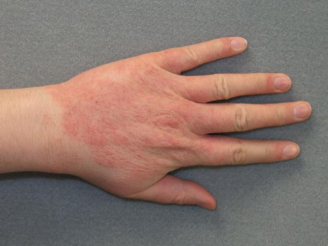 vörös foltok a kézen lymphostasis fotóval)