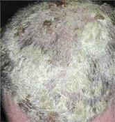 Így használja a Psoratinexet hajas fejbőrön!