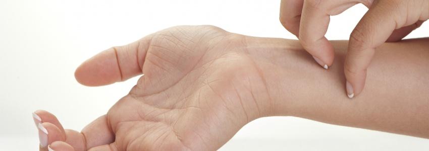 pikkelysömör hogyan lehet megszabadulni a viszketstl pikkelysömör kezelése istra