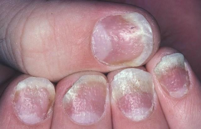 hogyan kezeljük a pikkelysömör propolissal leégés után vörös foltok jelentek meg a bőrön