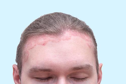 hogyan kell kezelni az orr pikkelysömörét)