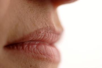 az ajkak sarkában vörös foltok és hámlás vannak