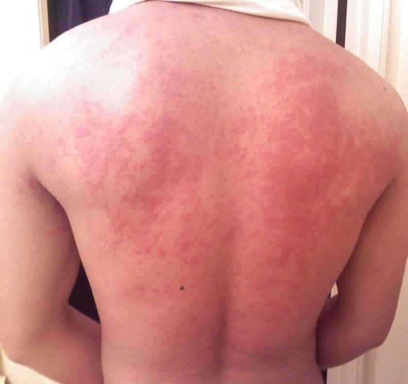 vörös foltok a testen viszket és fáj fénykép pikkelysömör kezelése zldsggel