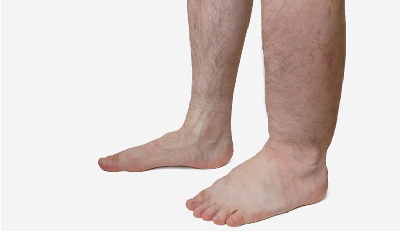 piros folt jelent meg a lábán, és fáj)