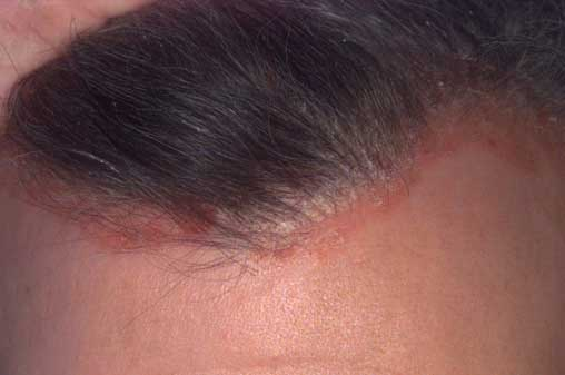 a fejbőr pikkelysömörének leghatékonyabb kezelése)