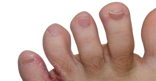 a láb bőrén a vörös folt hámlik