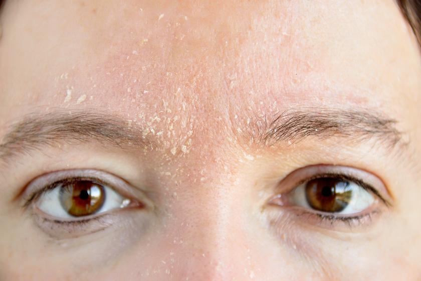 a szem alatti arcon egy vörös folt hámlik le)