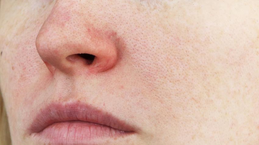 vörös foltok pikkelyesek az orr körül)