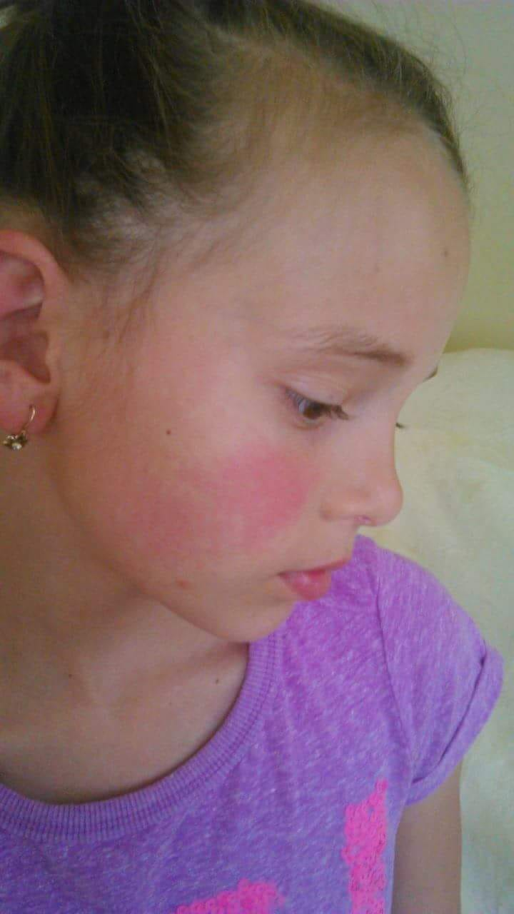 torokfájás vörös foltok az arcon)