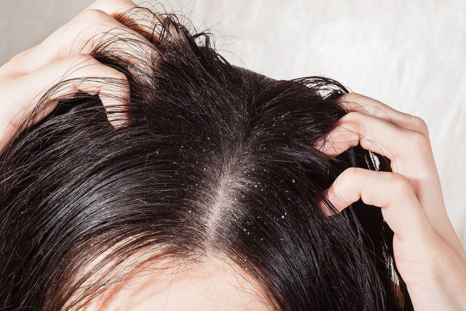 fejbőr pikkelysömör hogyan kell kezelni fotó