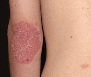 Az alternatív gyógyászat gyógyíthatja a pikkelysömör kiütések a lábak bőrén vörös foltok formájában viszketés nélkül