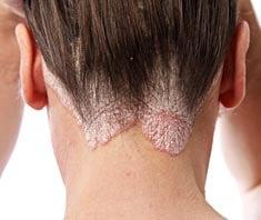 pikkelysömör kezelése hemodezzel