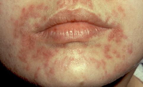 A cukorbetegség bőrön megjelenő tünetei és következményei Vörös foltok az arcon cukorbetegség fotó